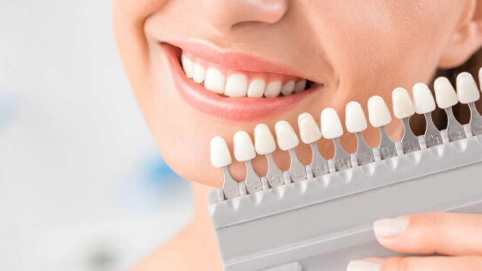 A Beginners Guide To Veneers Procedure